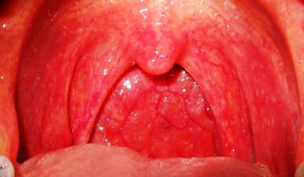 Красная задняя стенка горла как лечить